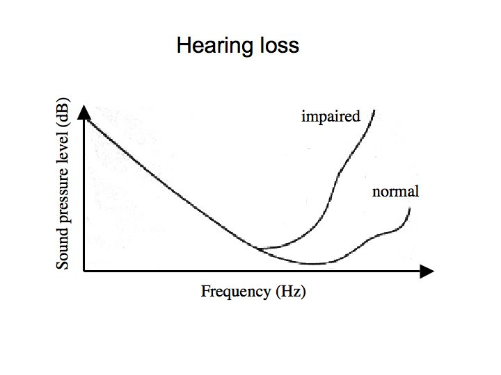 Perception lecture notes the ear examples are shown in the graph which plots threshold sound pressure level vs frequency for someone with normal hearing and for someone with hearing loss ccuart Images